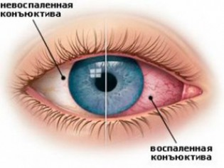 Сухой глаз или аллергия?