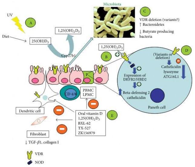 Что такое синдром раздраженного кишечника?