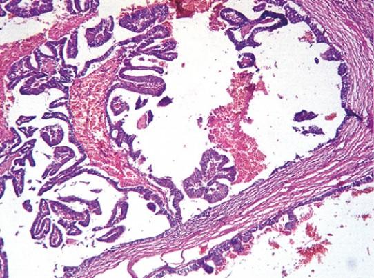 Атипическая внутрипротоковая папиллома