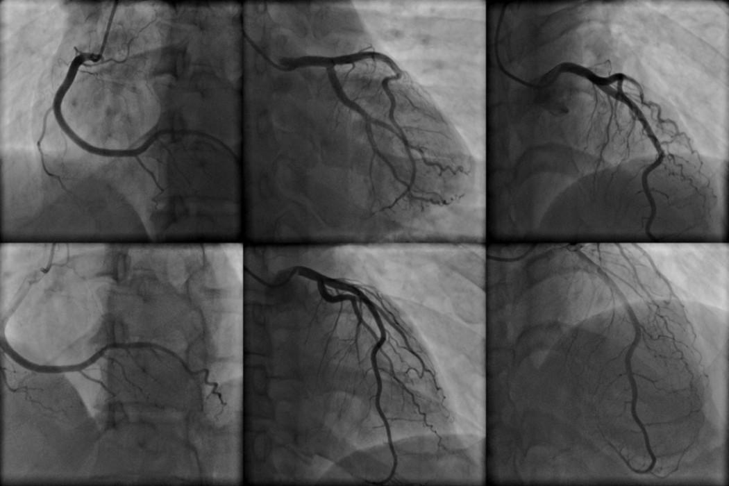 Какие специальные исследования могут выполняться во время катетеризации сердца?