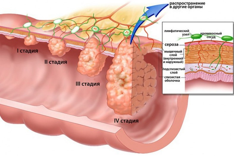 Использование родиолы розовой и элеутерококка