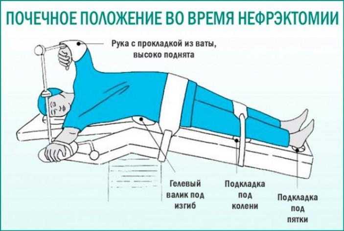 Реабилитация в домашних условиях