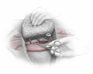 Пластика груди после мастэктомии (восстановление молочной железы)
