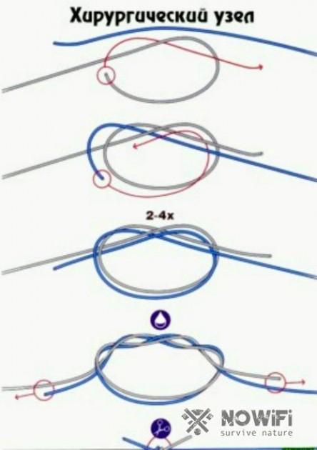 Разновидности хирургических узлов
