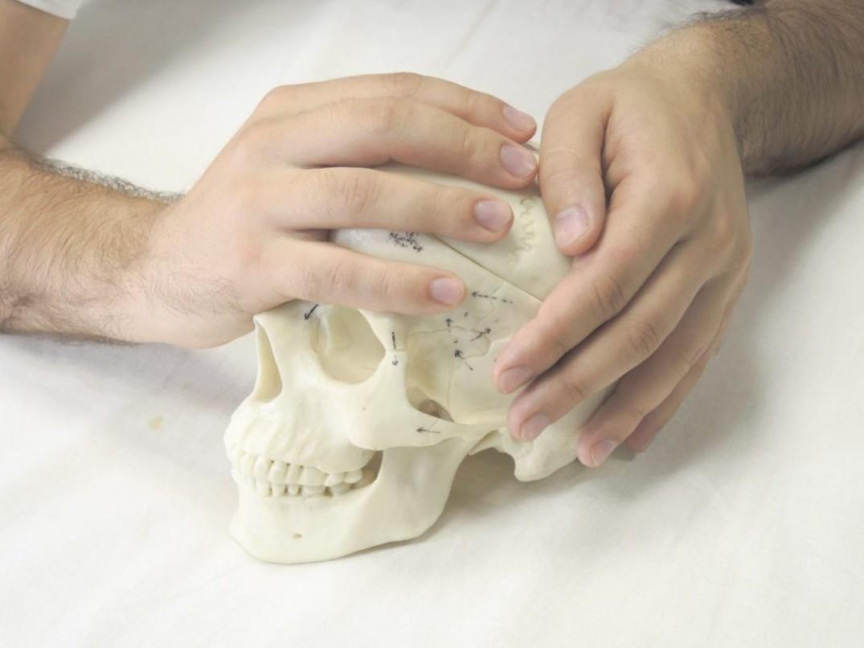 Вариант Теменная кость заблокирована во внутренней ротации, лобная кость свободна