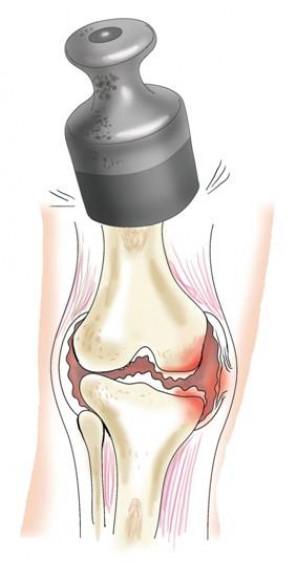 Мануальная терапия при лечении суставов