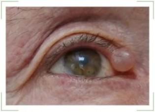 Атерома века глаза, слезного мясца: лечение и удаление