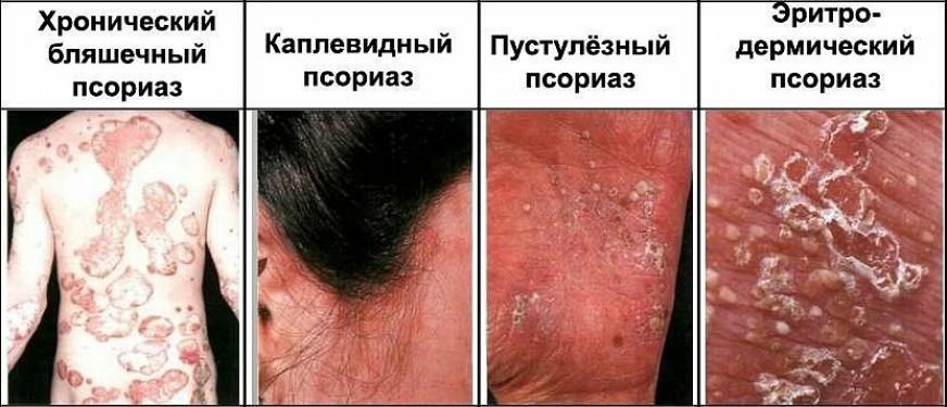 Виды и формы заболевания