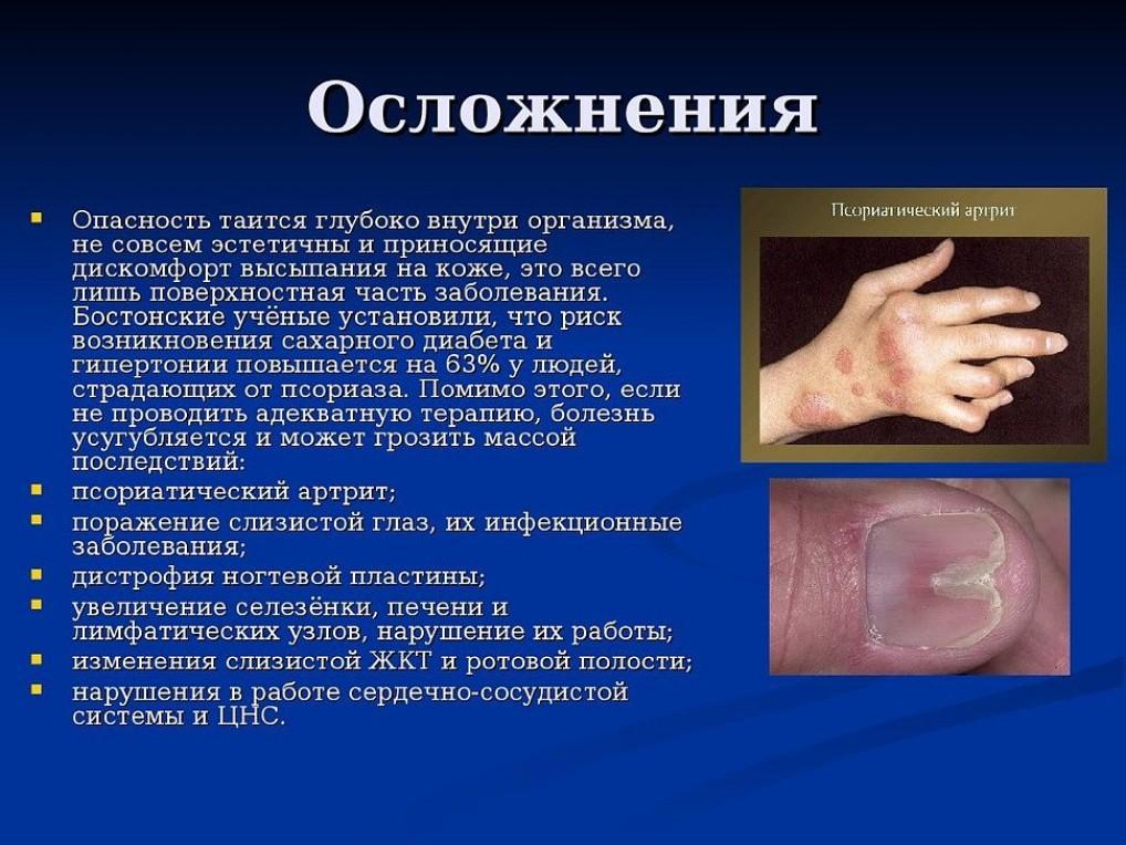 Опасные осложнения при псориазе