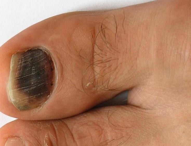 Если ногти чернеют от микотических инфекций