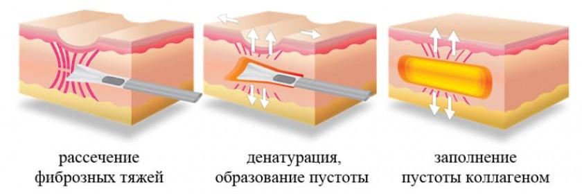 Субцизия – самое эффективное средство от шрамов после прыщей на лице