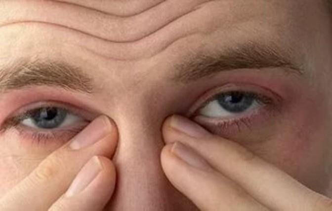 Как лечится атопический дерматит вокруг глаз или на веках: симптомы проявления, причины, мази и крема от заболевания