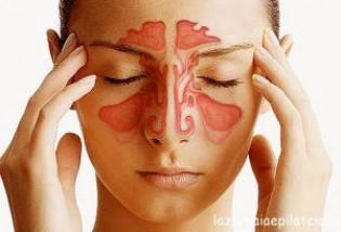 Гайморит: симптомы, причины, лечение медикаментозными методами и с помощью средств народной медицины