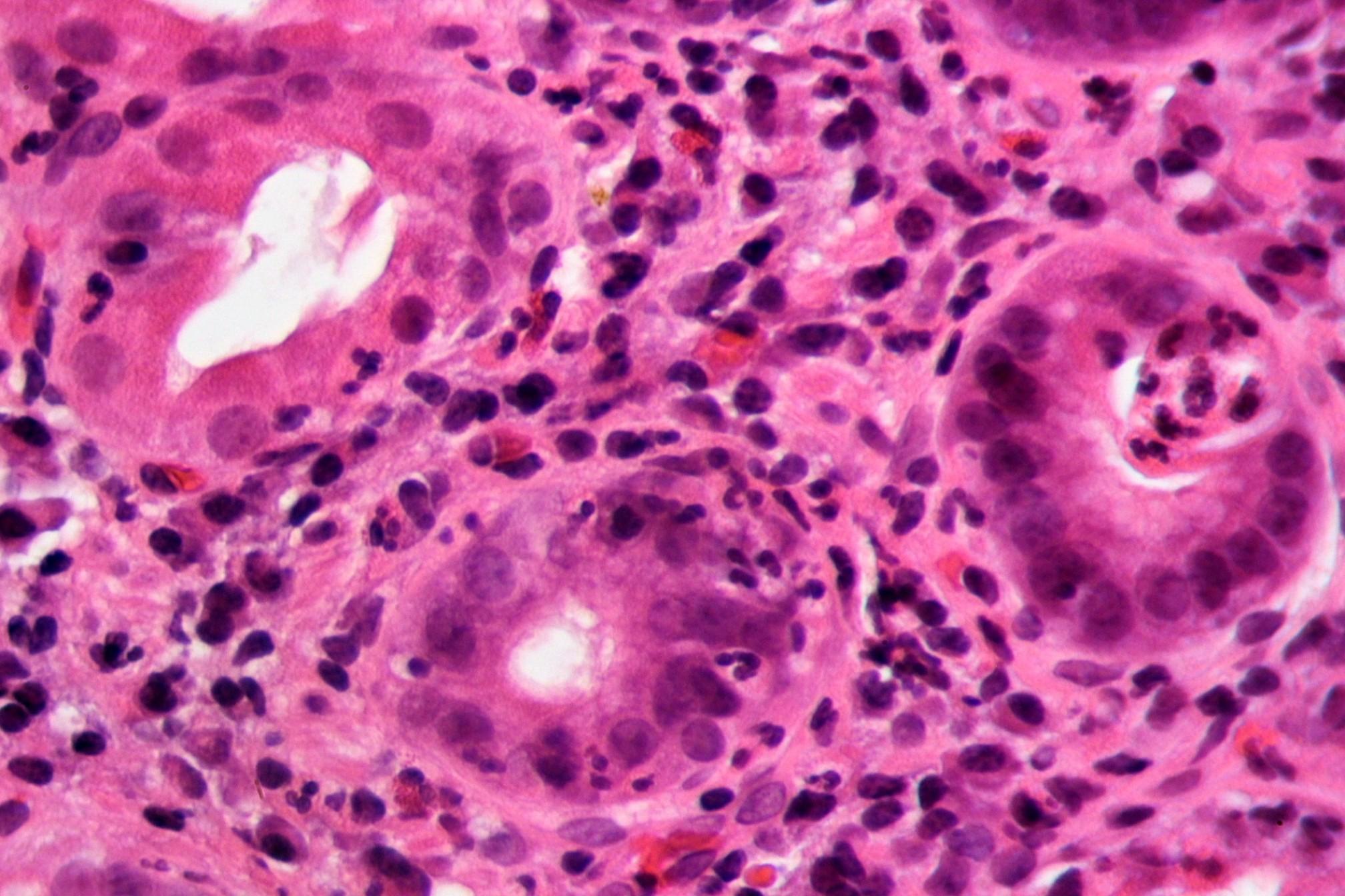 Бактерии в нашем желудке