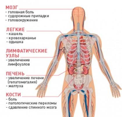 Как метастазируют различные виды рака?
